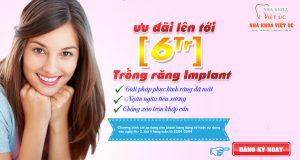 banner trồng răng implant tinh