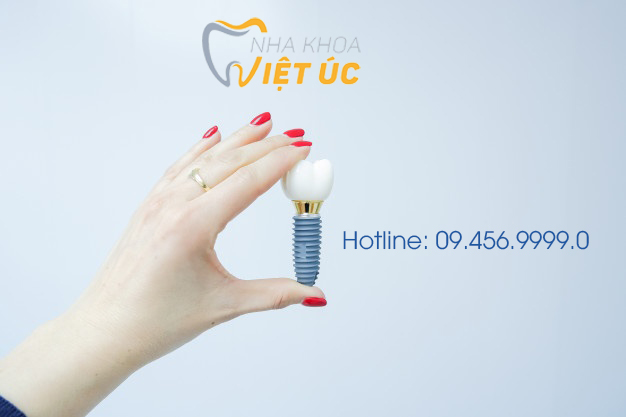 female-hand-holding-tooth-implant-false-tooth-tooth-human-implant-dental-concept-human-teeth-dentures_85672-811